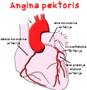 angina pektoris simptomi