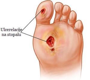 šta je dijabetičko stopalo