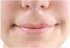 izlečite herpes na usni prirodnim lekom