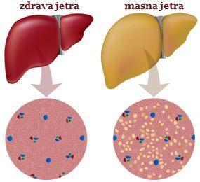masna jetra prirodno lečenje