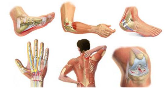 tendinitis simptomi