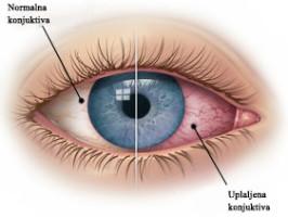 konjuktivitis oka lečenje