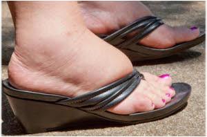 sprečite oticanje nogu u trudnoći