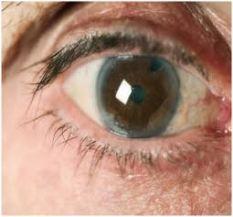 šta je zelena mrena na oku