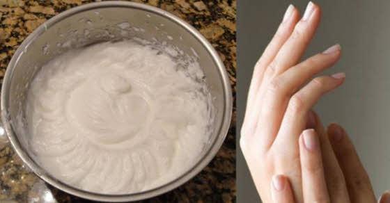 pucanje kože na rukama