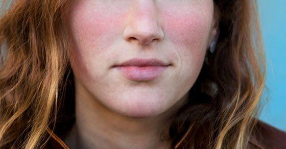 lečenje lupusa prirodnim metodama