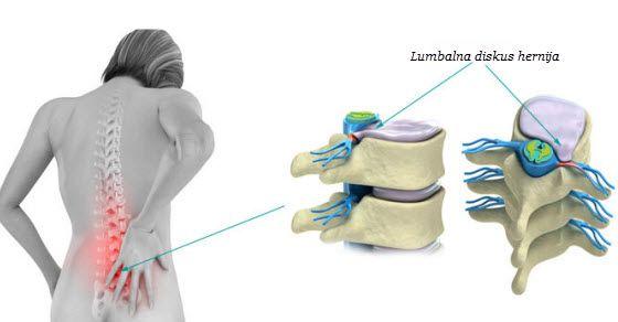 hernija diska simptomi