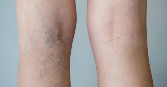uklanjanje kapilara na nogama