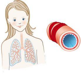 alergijska astma simptomi kod odraslih