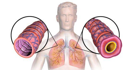 simptomi astme kod odraslih kako se manifestuju
