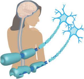 Kako se otkriva multipla skleroza