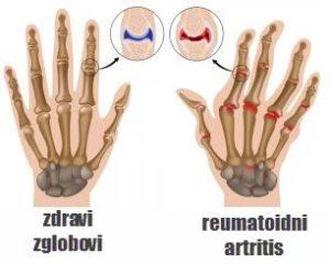 reumatoidni artritis simptomi