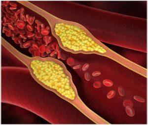 ateroskleroza simptomi oboljenja