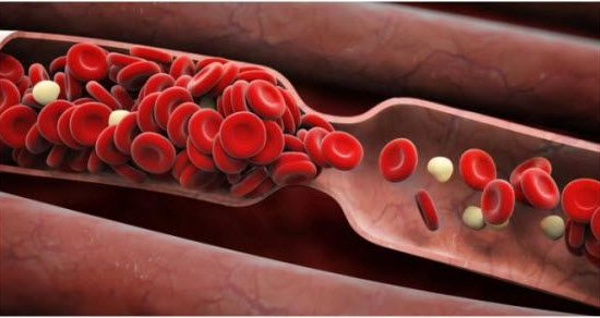 zakrčenje krvnih sudova lečenje