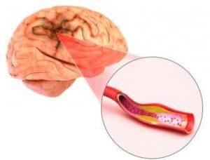 simptomi moždanog udara i opasnosti po zdravlje