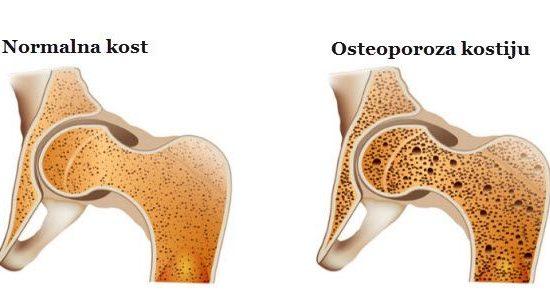 šta je osteoporoza i kako se leči prirodno