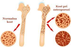 prirodni lekovi za osteoporozu recepti