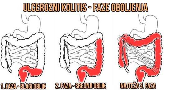 simptomi ulceroznog kolitisa faze