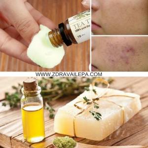 ulje čajnog drveta za zdravlje je odavno poznat prirodni lek u tradicionalnoj medicini