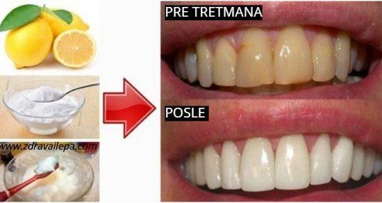 Kako izbeliti zube prirodno bez hemije