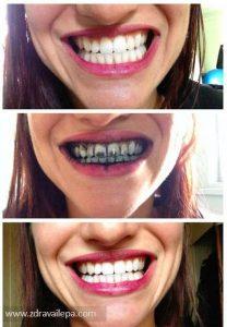 Izbeljivanje zuba hidrogen peroksid