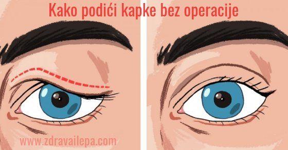 podizanje kapaka bez operacije